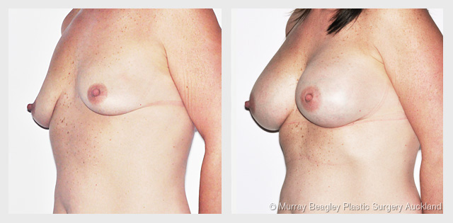 breast enlargement before and after plastic surgery