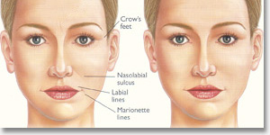 non-surgical fillers and Botox ®